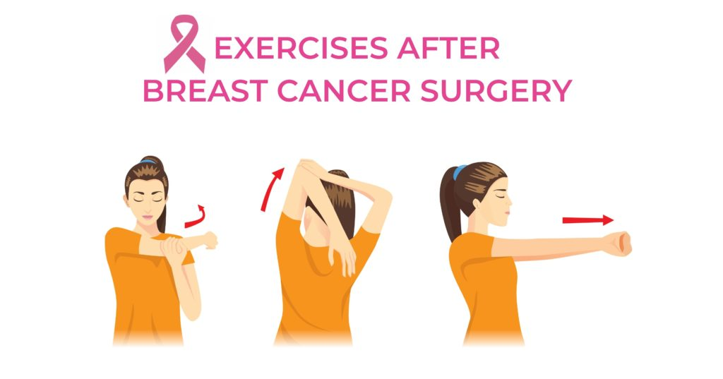 Exercises after undergoing breast cancer surgery