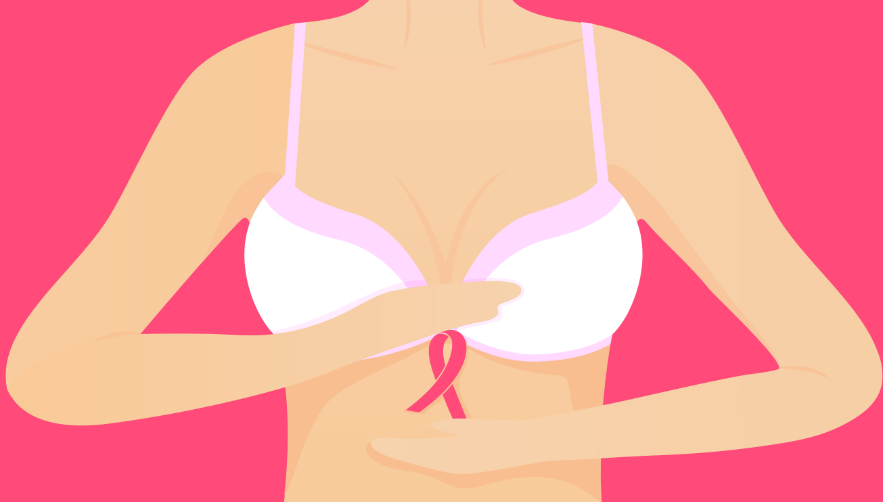 Post mastectomy bra and prosthesis for cancer survivors