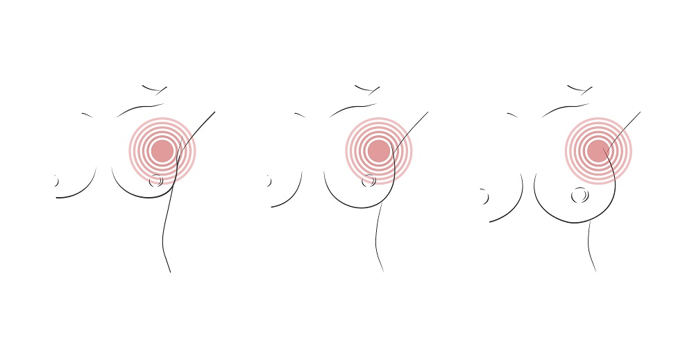 Pain around breast area after breast cancer treatment